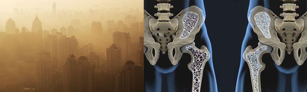La Contaminacion Del Aire Puede Causar Huesos Debiles