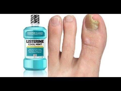 Quedaras boca abierta cuando sepas los usos del Listerine que no conocías