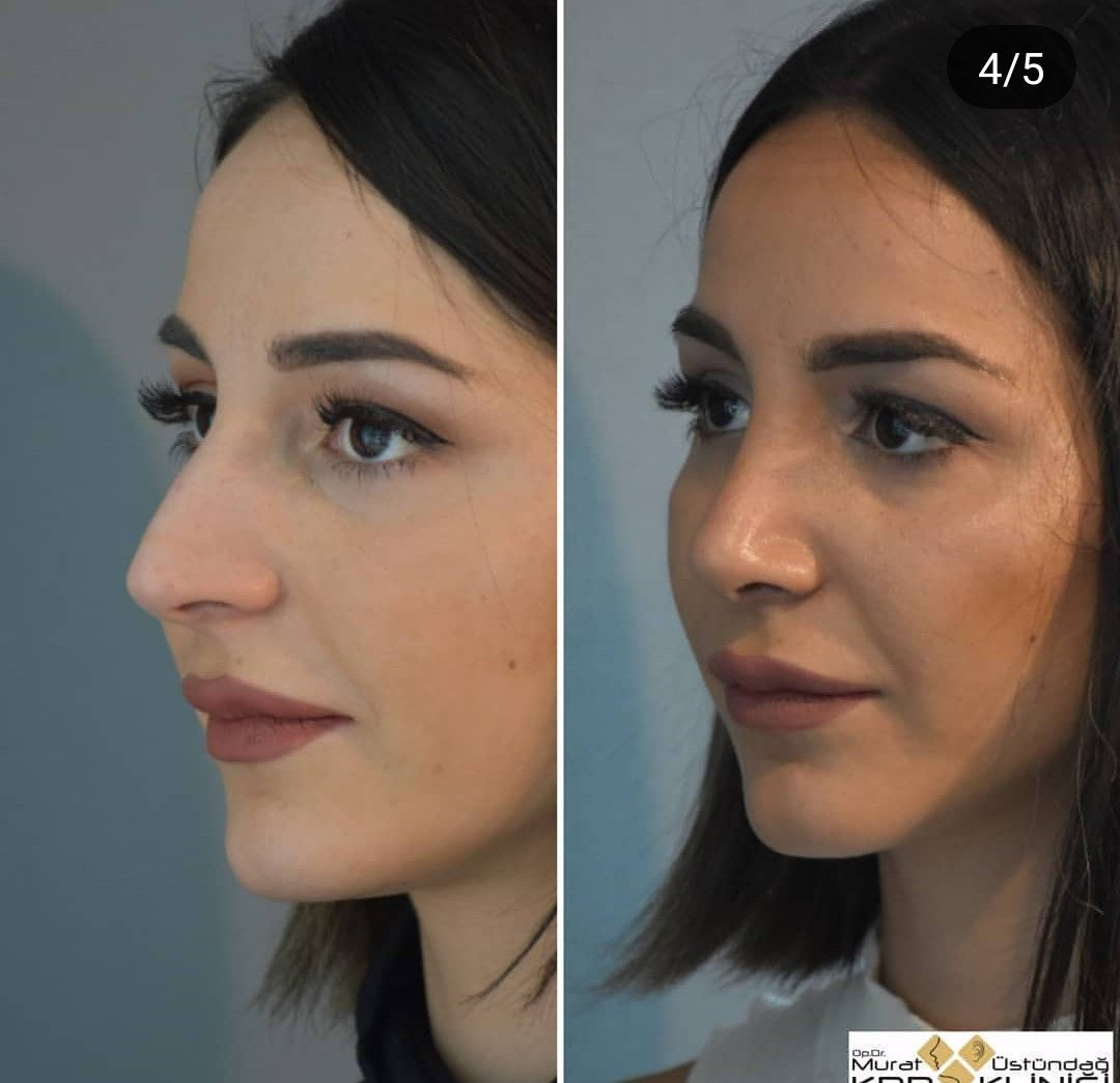 Pin by Sebastián Acosta on Nose plastic surgery in 2020