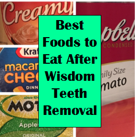What To Eat After Wisdom Teeth Removal After Wisdom Teeth Removal Wisdom Teeth Removal Food Wisdom Teeth Removal