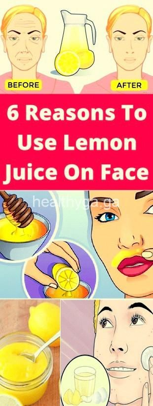 These 6 Reasons, To Use Lemon Juice, On Face!!!  #beautytips  #fitness