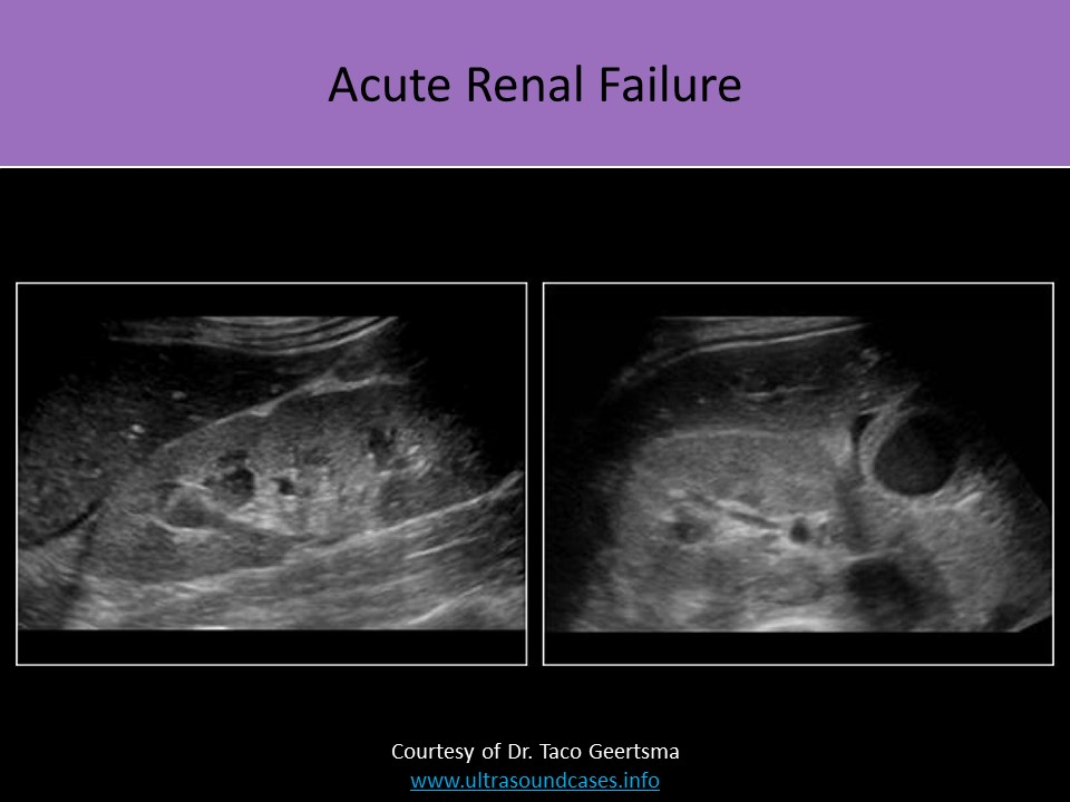 Infection Of The Kidneys Perinephric Fluid Collections Diagnostic Medical Sonography Acute Renal Failure Renal