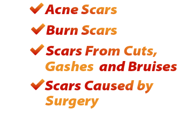 Pin On Scar Removal