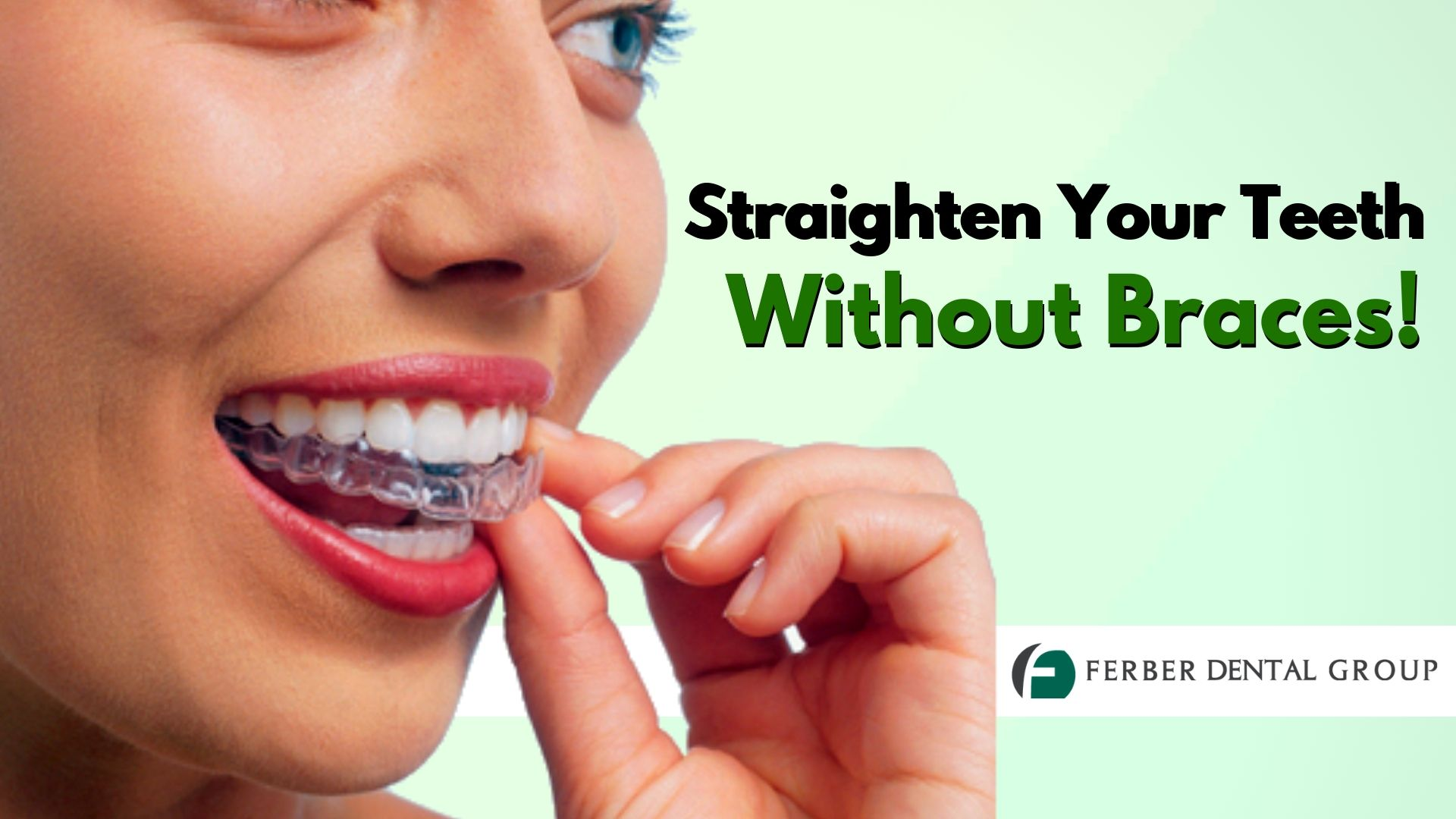 Clear braces ferber dental group invisible teeth