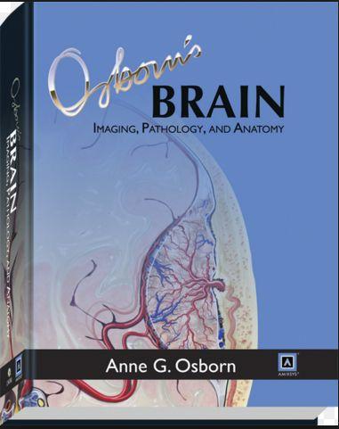 Osbornu0027s Brain Imaging, Pathology, and Anatomy (2013) PDF Free - copy blueprint medicines analyst coverage