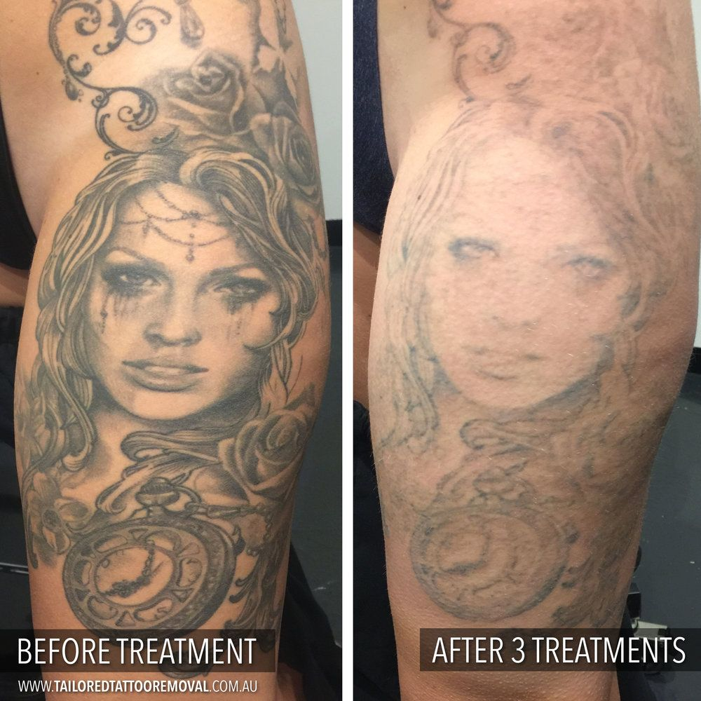 Laser Tattoo Removal Before And After Results Tattoo Removal Laser Tattoo Realism Tattoo