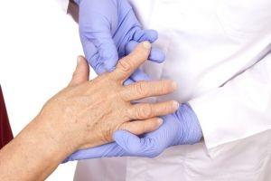 Rheumatoid Arthritis Diagnosis