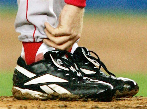 Curt Schillings Bloody Sock  --  Schilling pitched Game 2 of the 2004 World Series just days after he had surgery to repair a ruptured tendon sheath on his right ankle. As TV cameras zoomed in on the blood seeping through his sock, Schilling earned Boston a victory and himself a place in baseball history.
