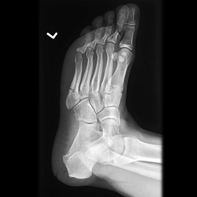 smith fracture radiology - 630×630