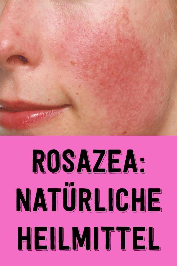 Rosazea: natürliche heilmittel #skincare