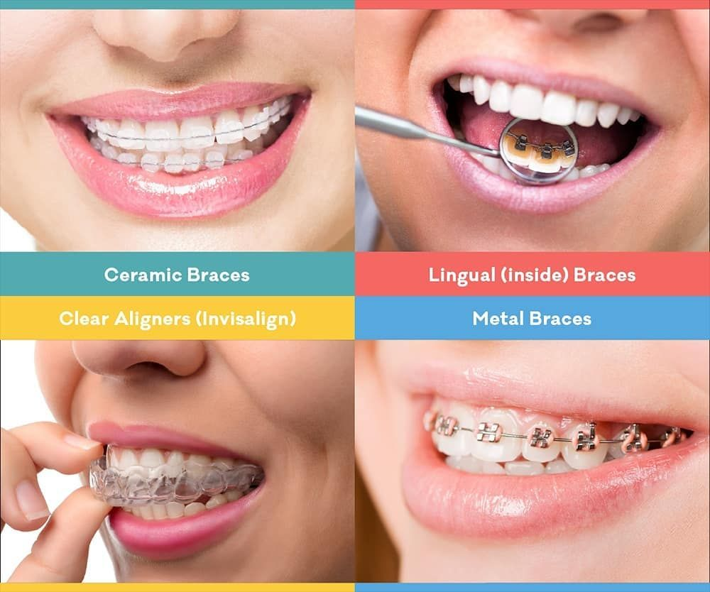 Can I Straighten My Teeth Without Braces Call Us And Make Your Appointment Today Www Palacindental Com 9 Dental Braces Dental Bridge Cost Dental Cosmetics