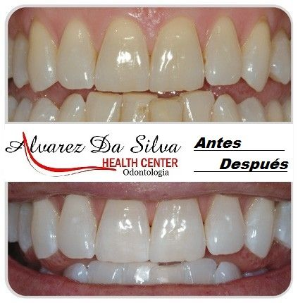 Blanqueamiento Dental..