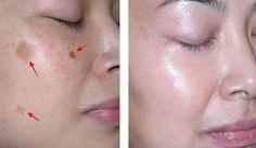 jugo de limon para eliminar manchas en la cara