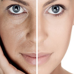 how to get rid of your pores at home