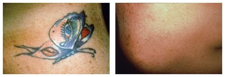 Before after tatoo removal laser tattoo laser tattoo