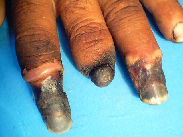 Natural Treatment Buerger S Disease