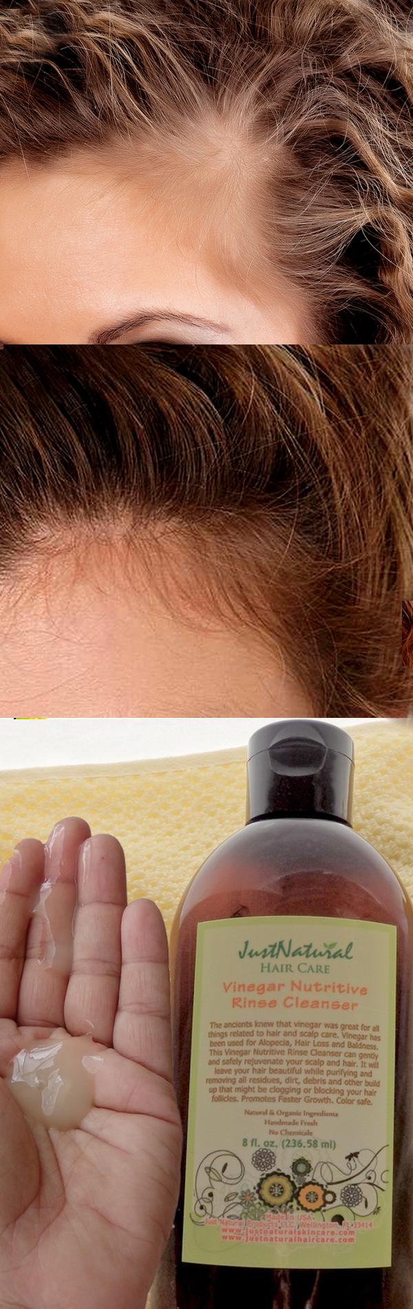 Vinegar Nutritive Rinse Cleanser Hair beauty__cat__