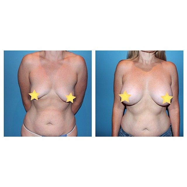 free breast consultation implants