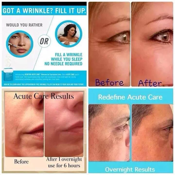 Botox in a box fill a wrinkle while you sleepdan fields botox in a box fill a wrinkle while you sleep solutioingenieria Image collections