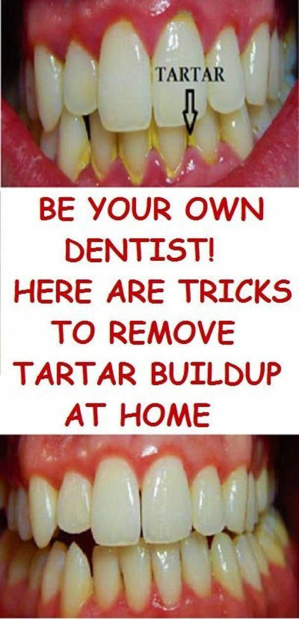 BE YOUR OWN DENTIST! HERE ARE TRICKS TO REMOVE TARTAR BUILDUP AT HOME #oralcare ...,  #Buildup #DENTIST #Home #oralcare #REMOVE #TARTAR #Tricks #WhatIsThePurposeOfOralCare #WhatDoesOralHealthCareMean #WhatIsOralCareProcedure