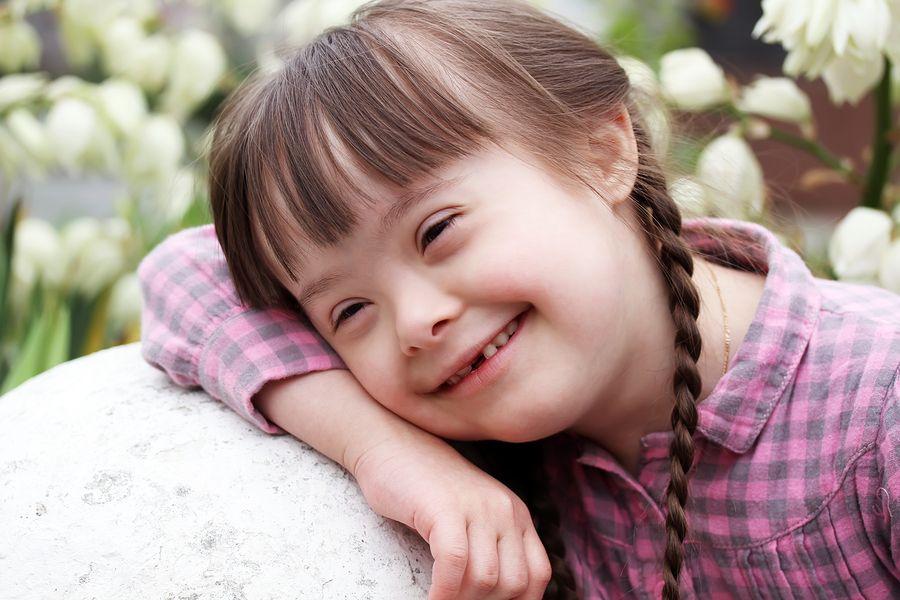 ١٠٠حقيقة عن متلازمة داون Down Syndrome Sleep Apnoea Volunteers Needed