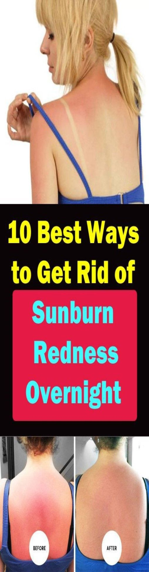 How To Get Rid Of A Face Sunburn Overnight