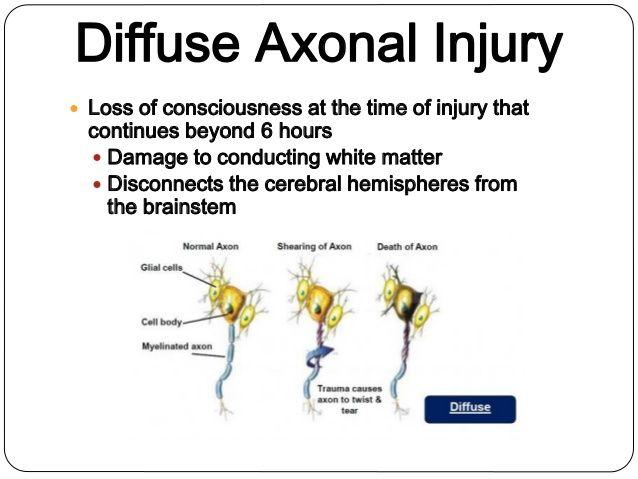 diffuse axonal injury mechanism - Google Search | Brain ...