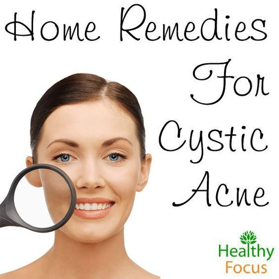Home Remedies for Cystic Acne include baking soda, apple cider ...