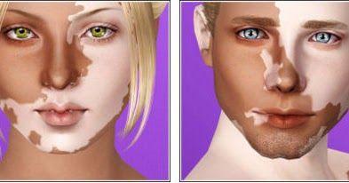 Best Daily Sims 3 S3 Vitiligo Skin By Moonskin93 Sims 3 Makeup Sims 3 Mods Sims 4 Cc Skin