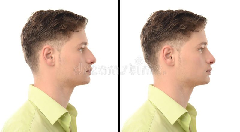 Before and after photos of a young man with nose job