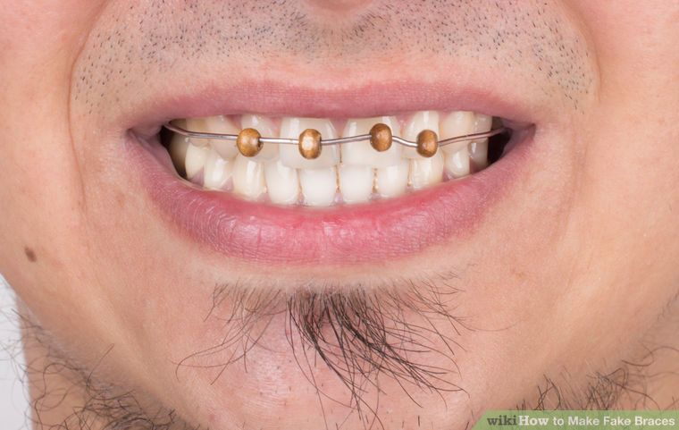 How to make fake braces 11 steps with pictures fake