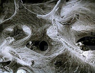 Rib Bone Scanning Electron Microscope 70x Esker Bone Bone Tissue Bone Osseous Tissue Scanning Electron Microscope Microscopic Photography Science Images