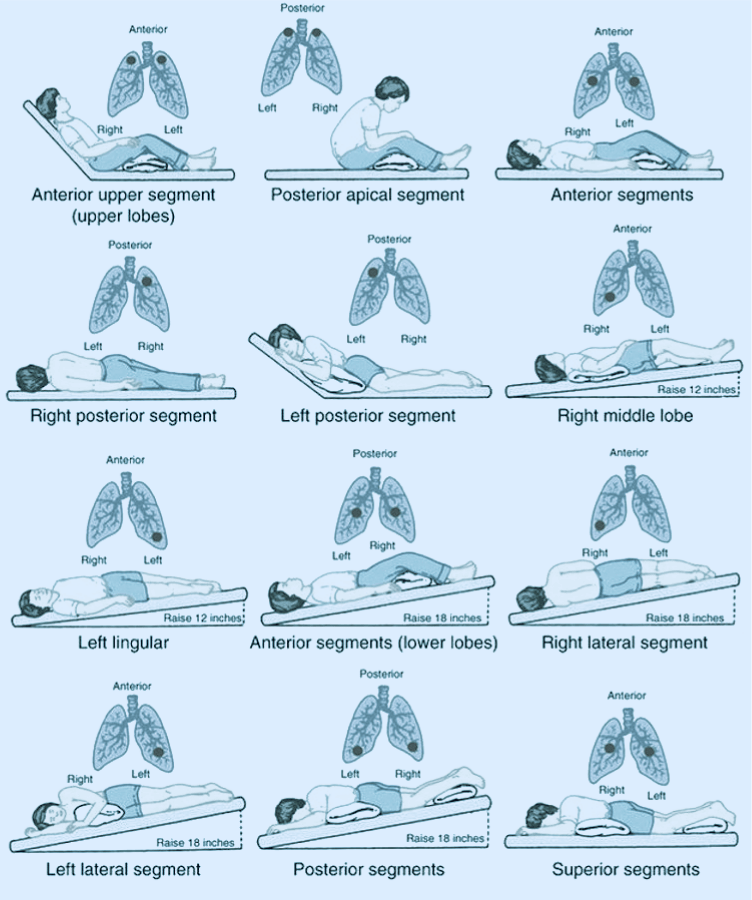 postural drainage positions for adults
