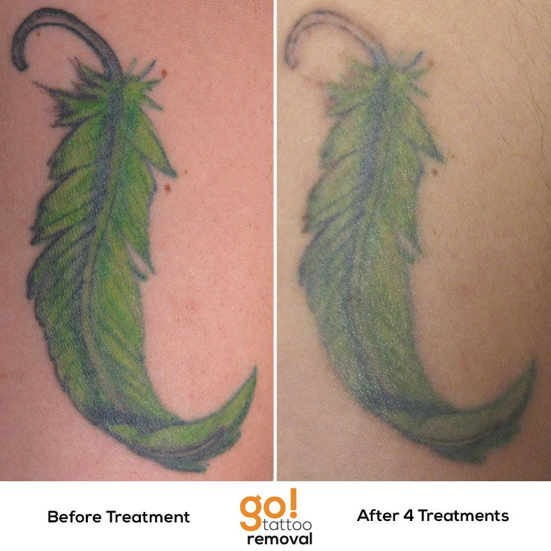 after 4 laser removal treatments the majority of