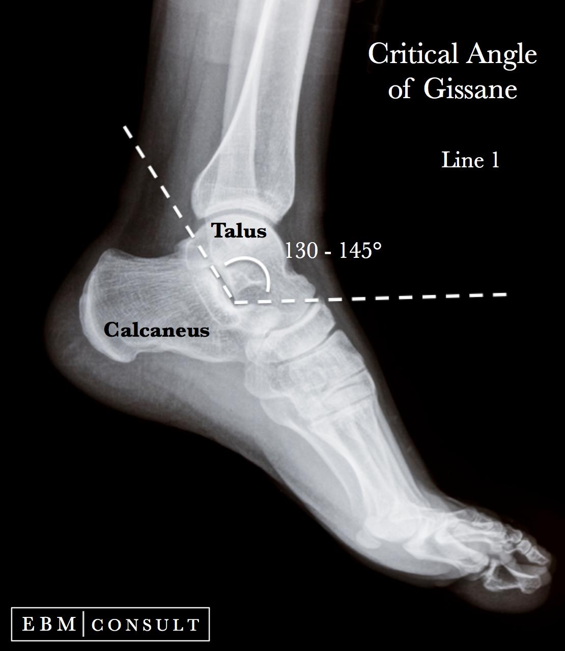 Gissane Angle Ankle Xray | Traumatología | Pinterest | Radiología ...