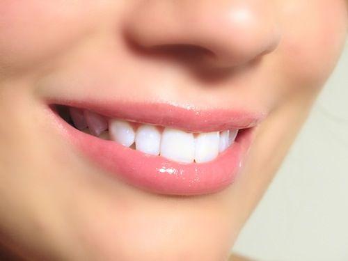 Bagaimana Ya Cara Rasional Memutihkan Gigi Anakku Magz Pinterest