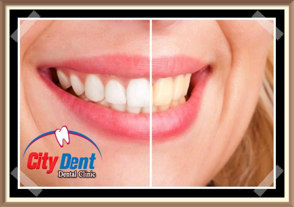 Blog Page 2 Of 9 مركز سيتى دينت لتجميل وتقويم وزراعة الأسنان Dental Clinic Dental Septum