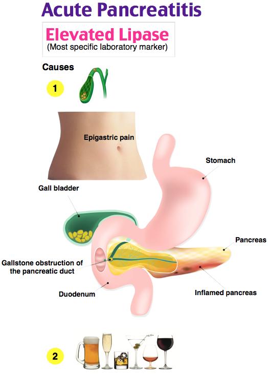 Acute Pancreatitis Acute Pancreatitis Nursing Tips Nursing