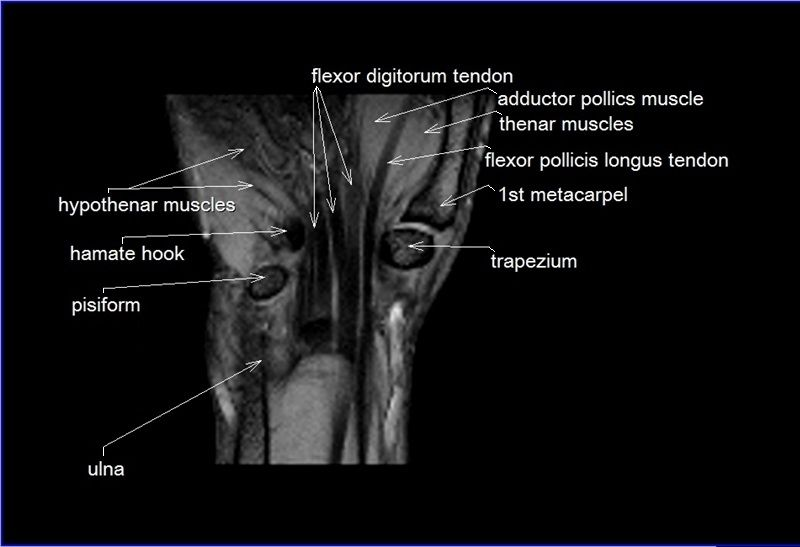 MRI wrist coronal anatomy | wrist tendon and ligaments anatomy ...