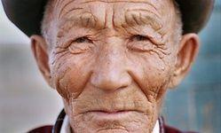 Los dermatólogos advierten de que el alto contenido en cal del agua del grifo puede irritar la piel