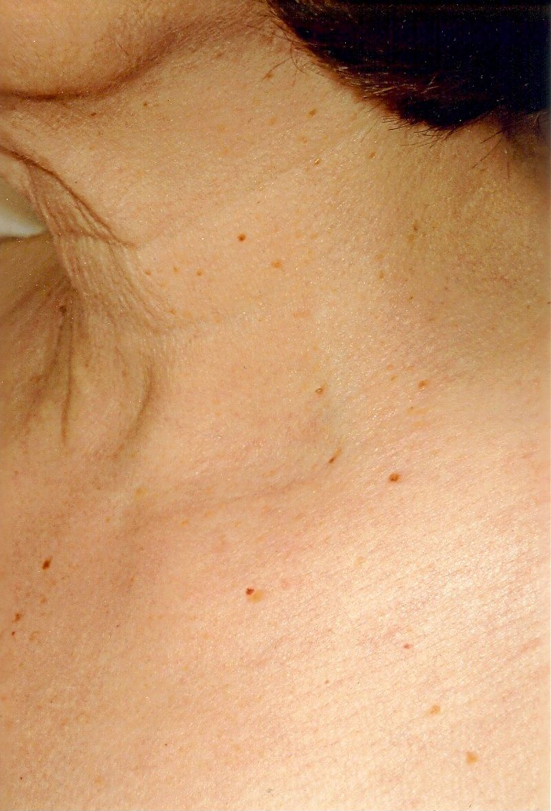 Raised Age Spots On Skin Check out this page for products