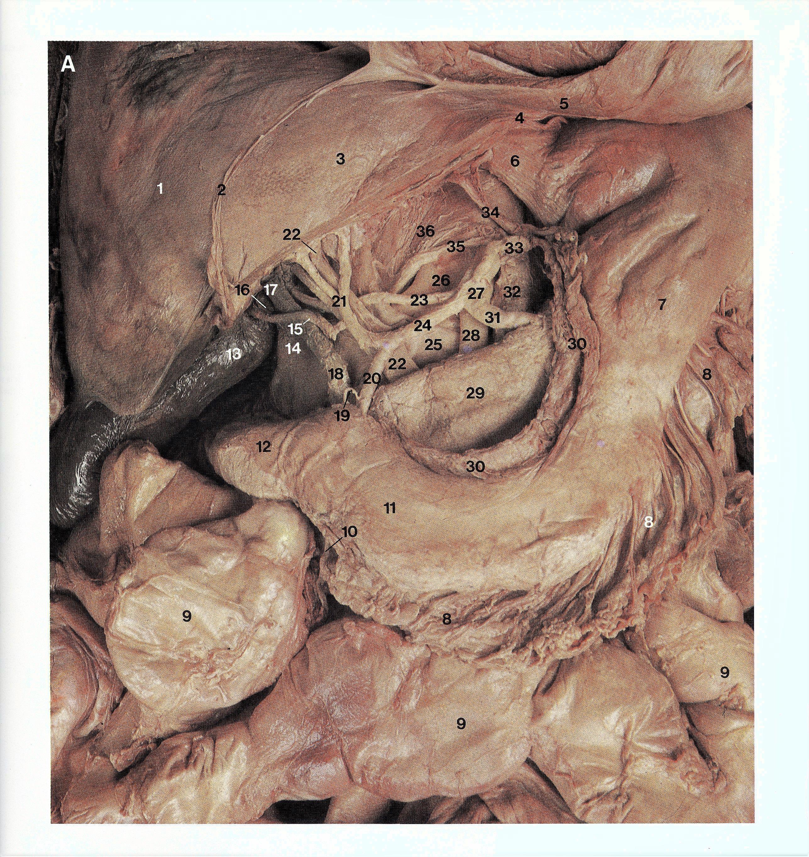 Pin by Bengt Sandberg on Part 5 of 6 - Abdomen and Pelvis - Atlas of ...