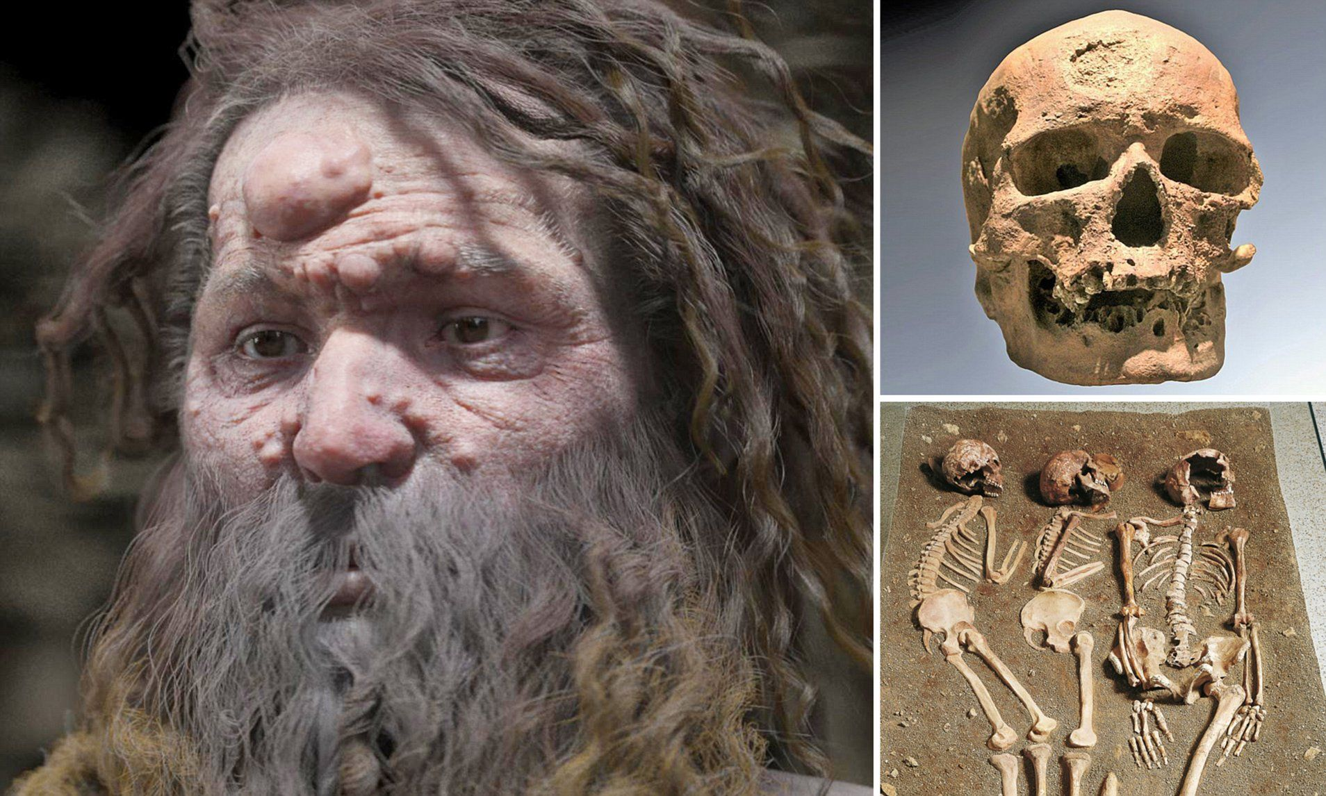 The Scarred Face Of Cro Magnon Man Revealed