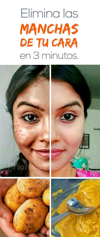 como quitar acne y manchas en la cara