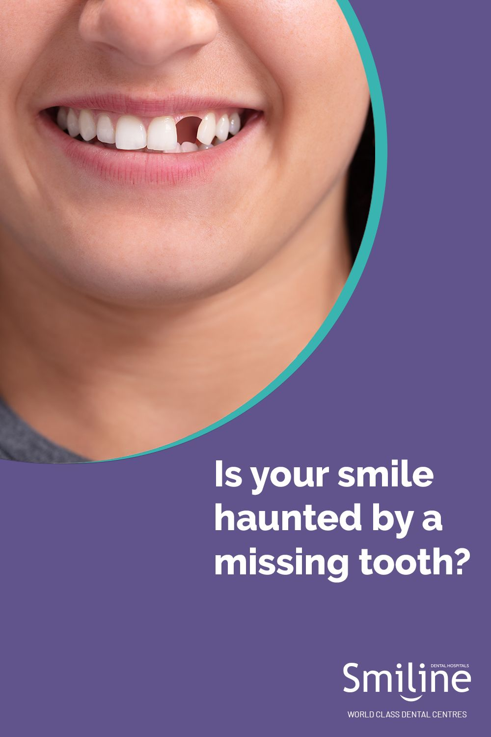 We at Smiline, provide the best of services for dental