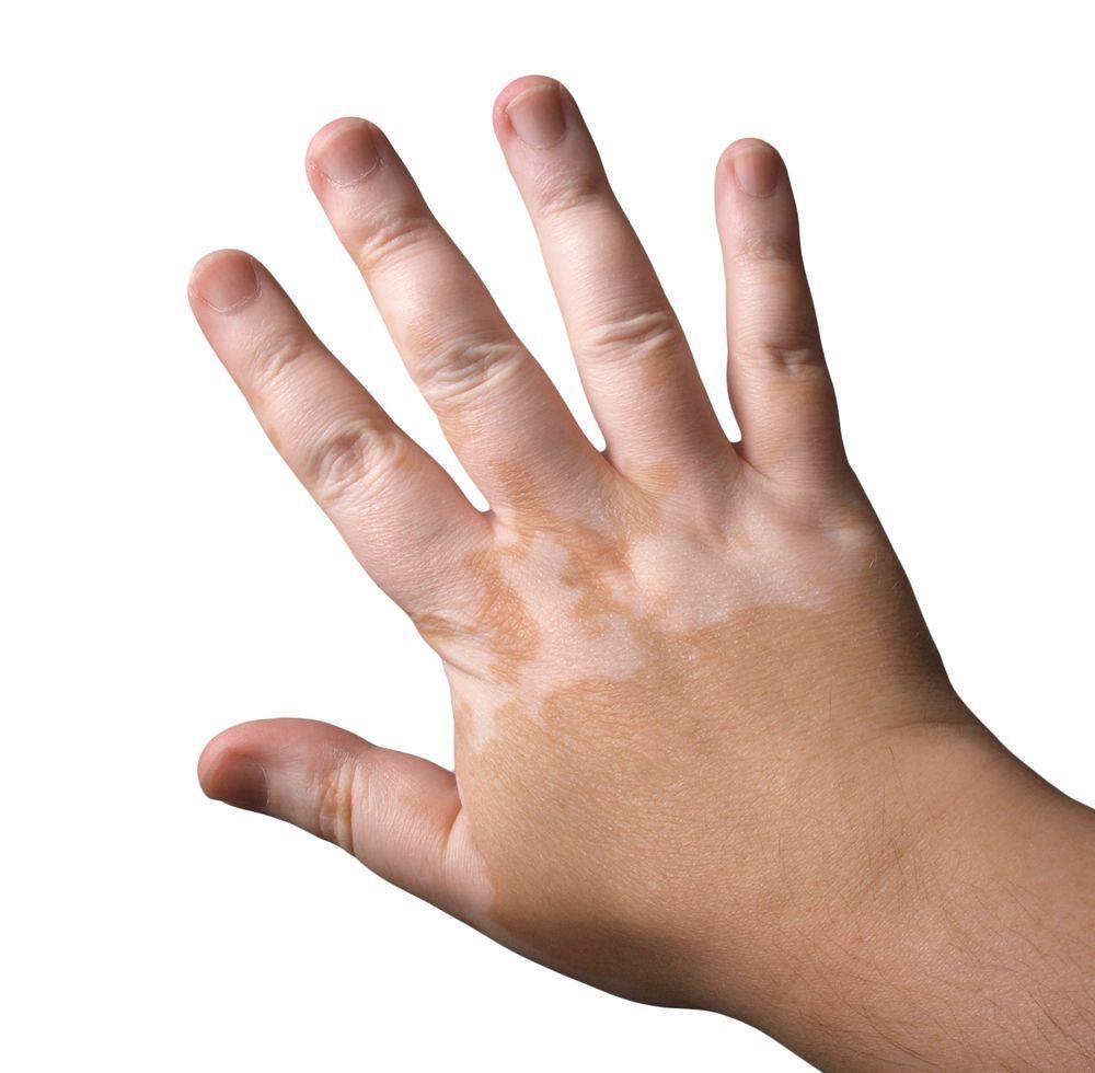 Hand with vitiligo
