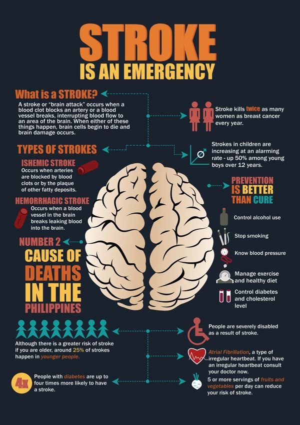 Stroke Is An Emergency Health Infographics Sıcakta