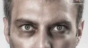 كيف تخلص سواد تحت العين كيف 24 Targaryen
