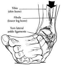 Ankle Inversino Sprain Jpg 210 226
