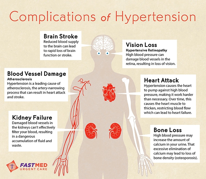 ways to reduce high blood pressure infographic - Google Search ...